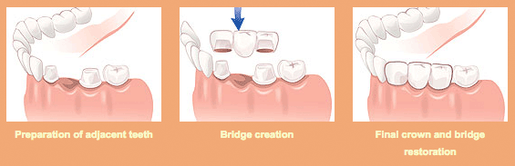 Crowns-&-Bridges