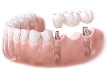 Multiple unit implants with bridge preparation