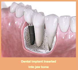 dental-implant-jaw-bone
