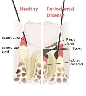 periodontal-illustration