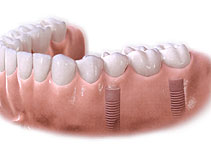 Mutiple unit implant bridge restoration